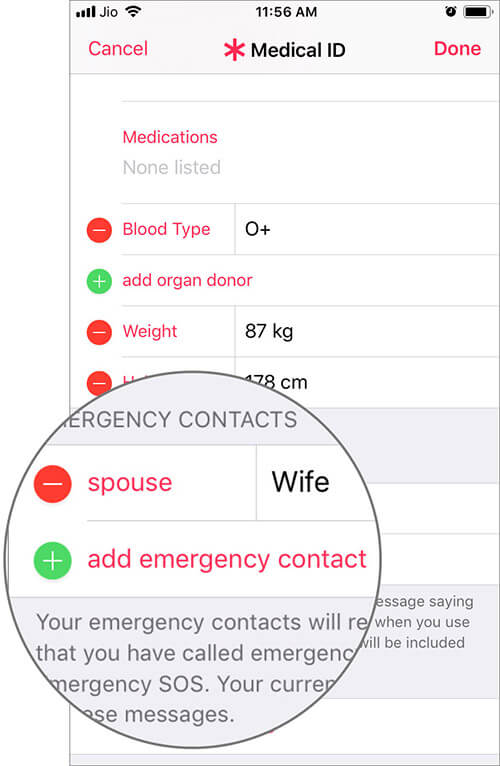 Add Emergency Contact in iPhone Health App