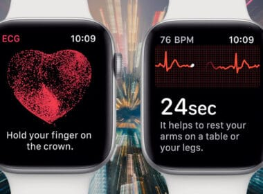 Apple Watch ECG Supported Countries