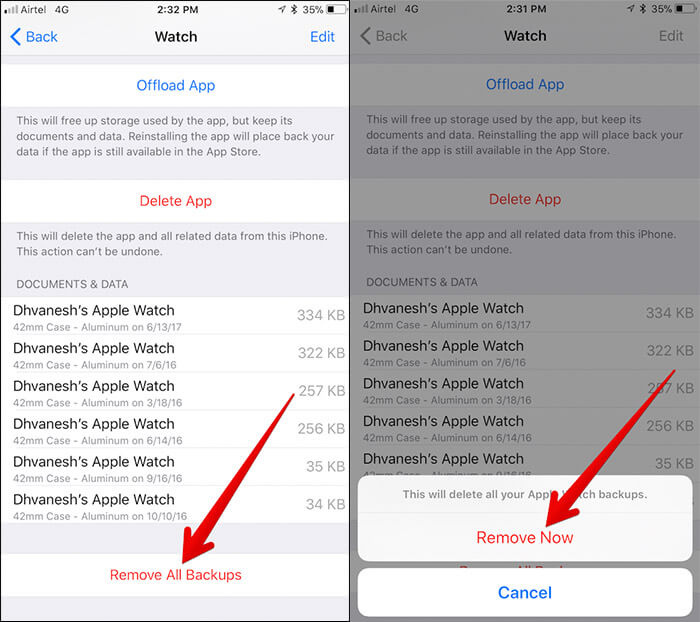 Delete All Apple Watch Backups from iPhone