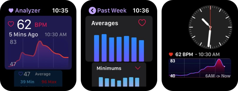 Heart Analyzer Apple Watch App Screenshot