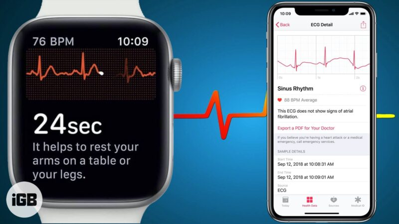 How to Use ECG on Apple Watch