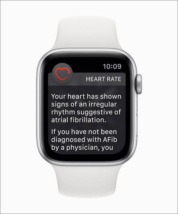 Irregular Rhythm Notification on Apple Watch Series 4