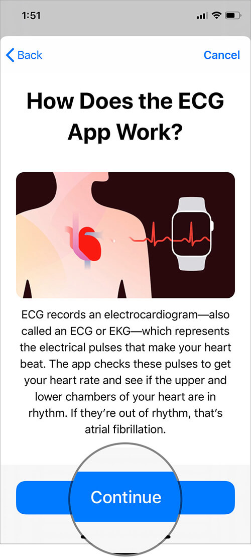 Read How ECG App Work Information and Tap on Continue in iOS Health App