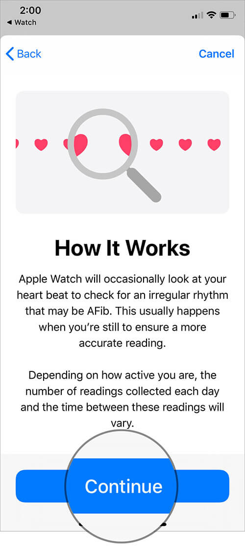 Read Irregular Heart Rate Notifications Work on Apple Watch