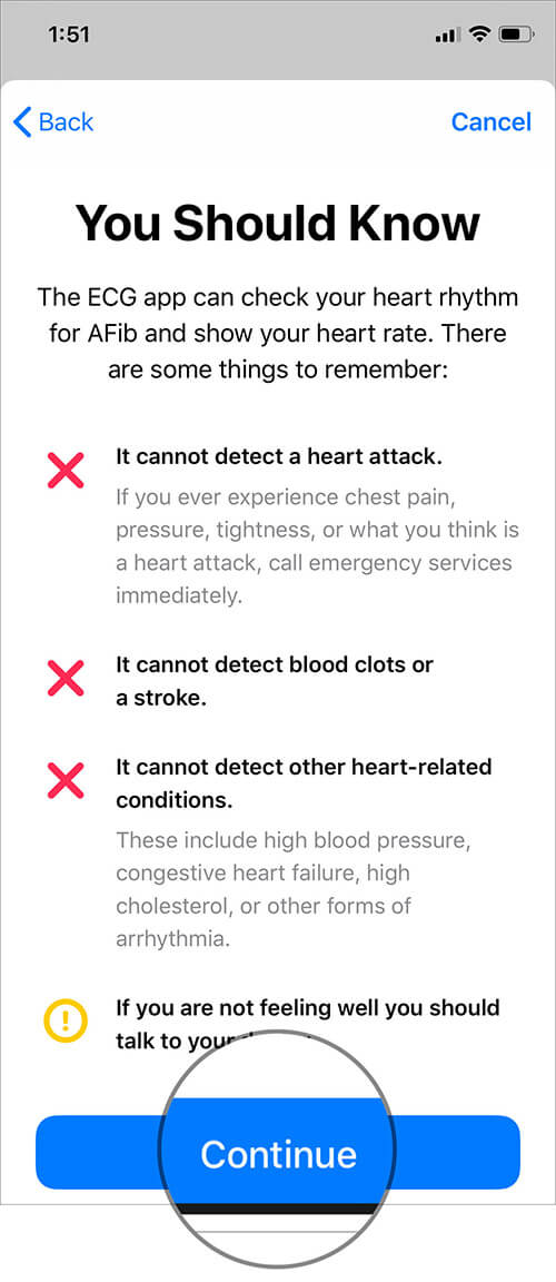 Read what the ECG app cannot do and Tap on Continue in iOS Health App