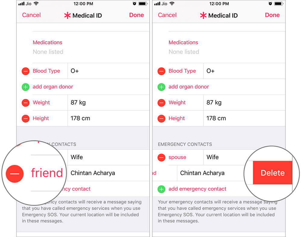 Remove Emergency SOS Contact from Health App on iPhone