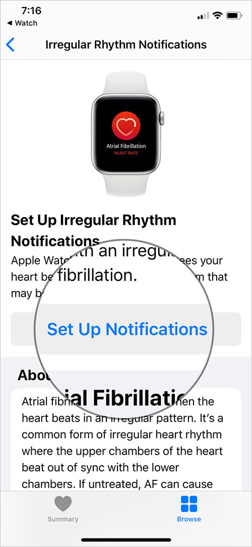 Set Up Irregular Heart Rate Notifications on Apple Watch