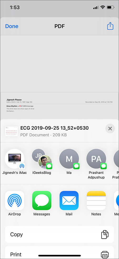 Share Export ECG Results with Doctor from iPhone
