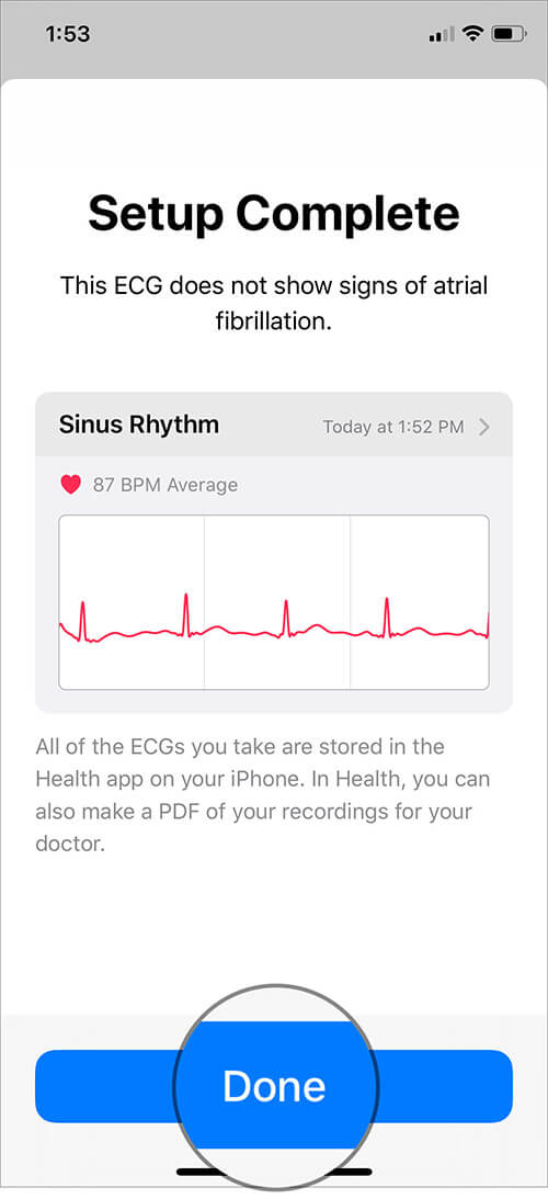 Tap on Done to Enable ECG on Apple Watch Series 4 or 5