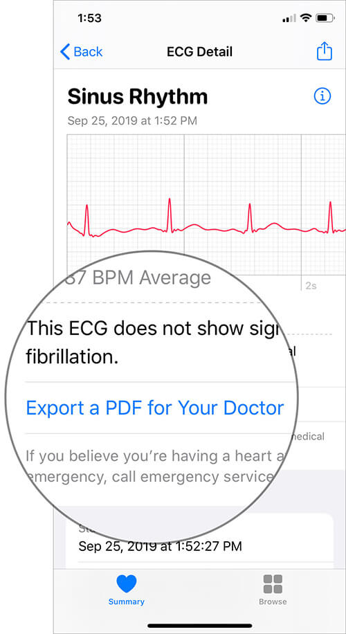 Tap on Export a PDF for Your Doctor in ECG Details in iOS Health App