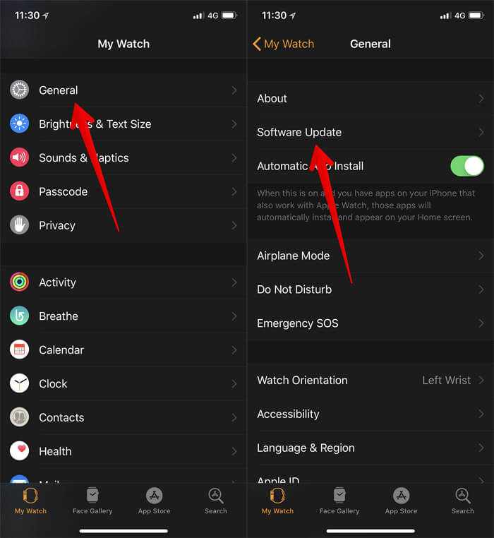 Tap on General and Software Update in iPhone Apple Watch App