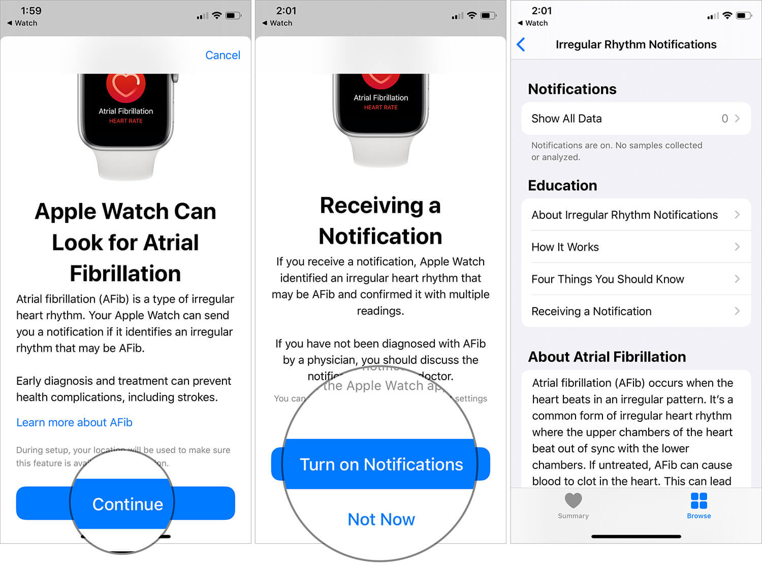 Turn ON Irregular Heart Rate Notifications on Apple Watch Series 4, 5