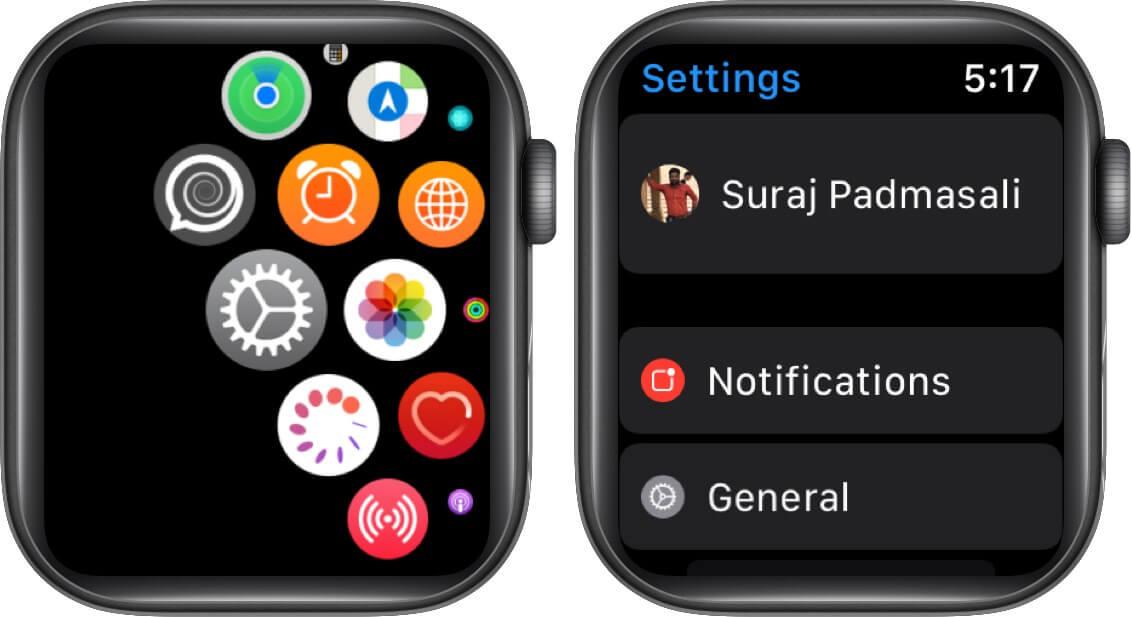 Tippen Sie auf Einstellungen und dann auf Allgemein auf der Apple Watch